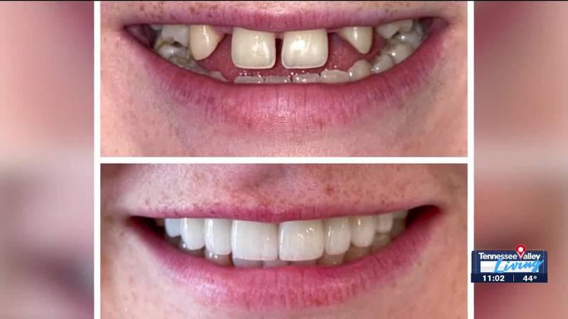 Smile makeover at Singing River Dentistry