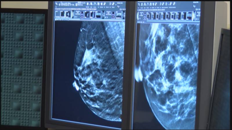 Do you have a large head? If yes, do you know it may increase your risk for breast cancer?