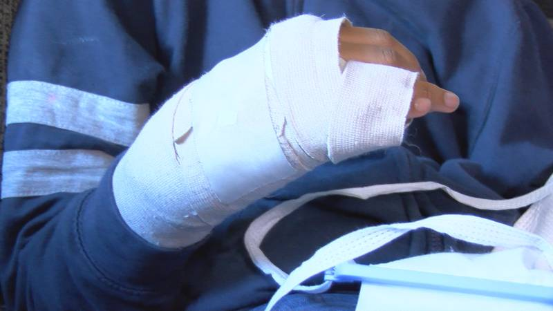 Students hand broken in bathroom attack, according to mom. Huntsville Parents speak out against...